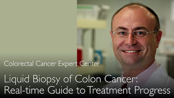 Liquid biopsy of colon cancer. How to monitor cancer treatment continuously. 5